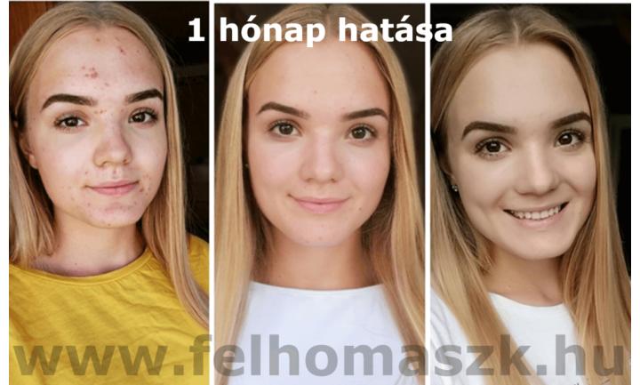 felhomaszk-hatas