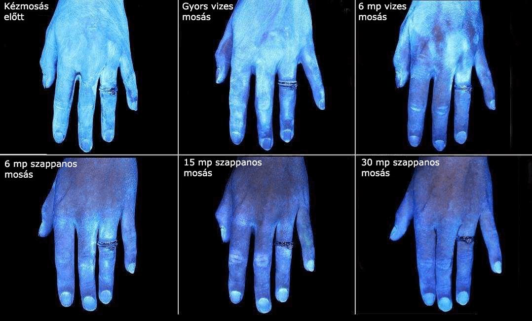 uv-feny-alatt-a-kezek-tisztulasa